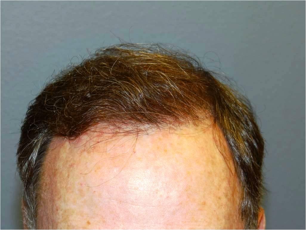 Manual Fue Hair Transplant Cosmetic Town