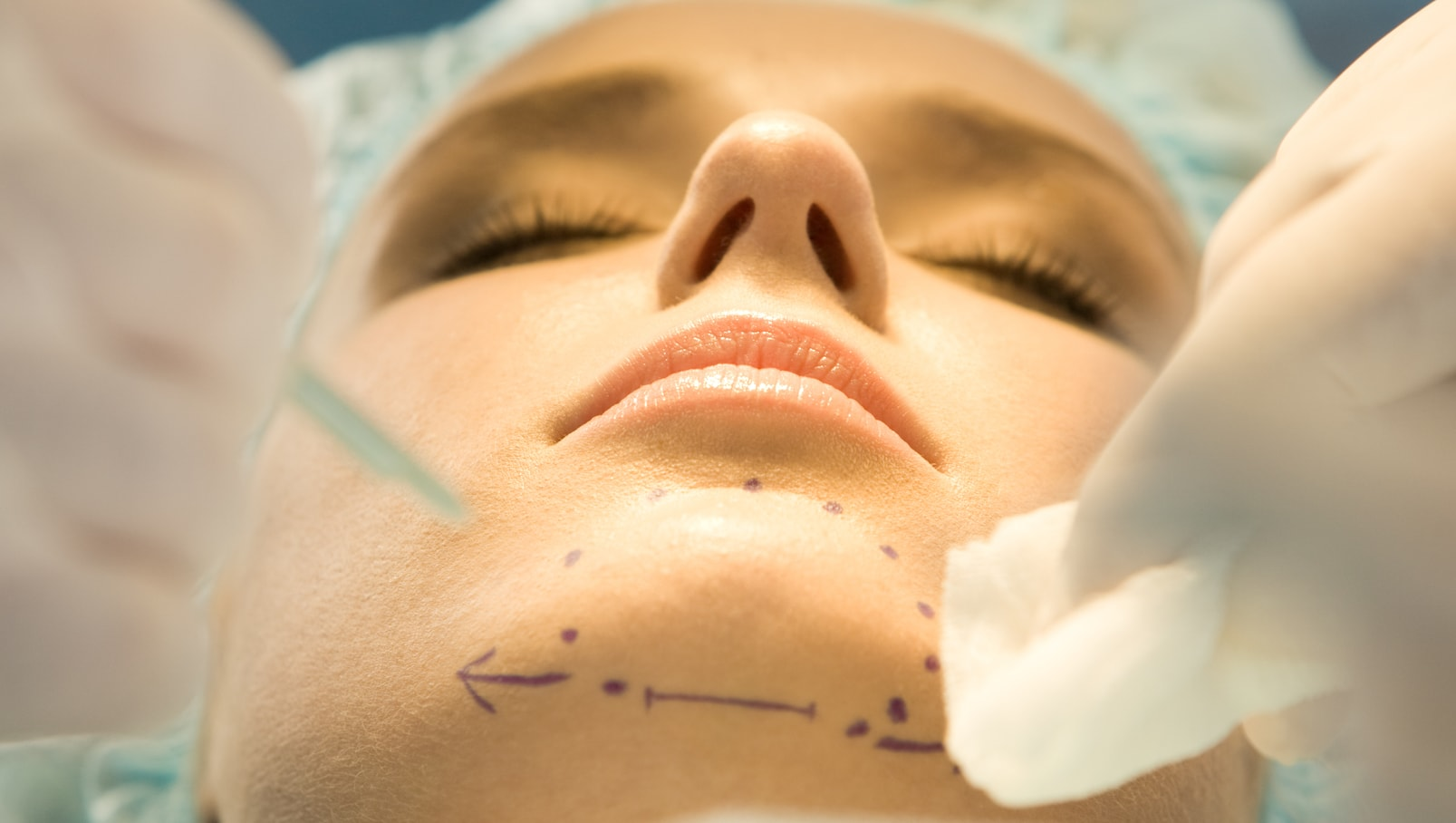 Chin Liposuction
