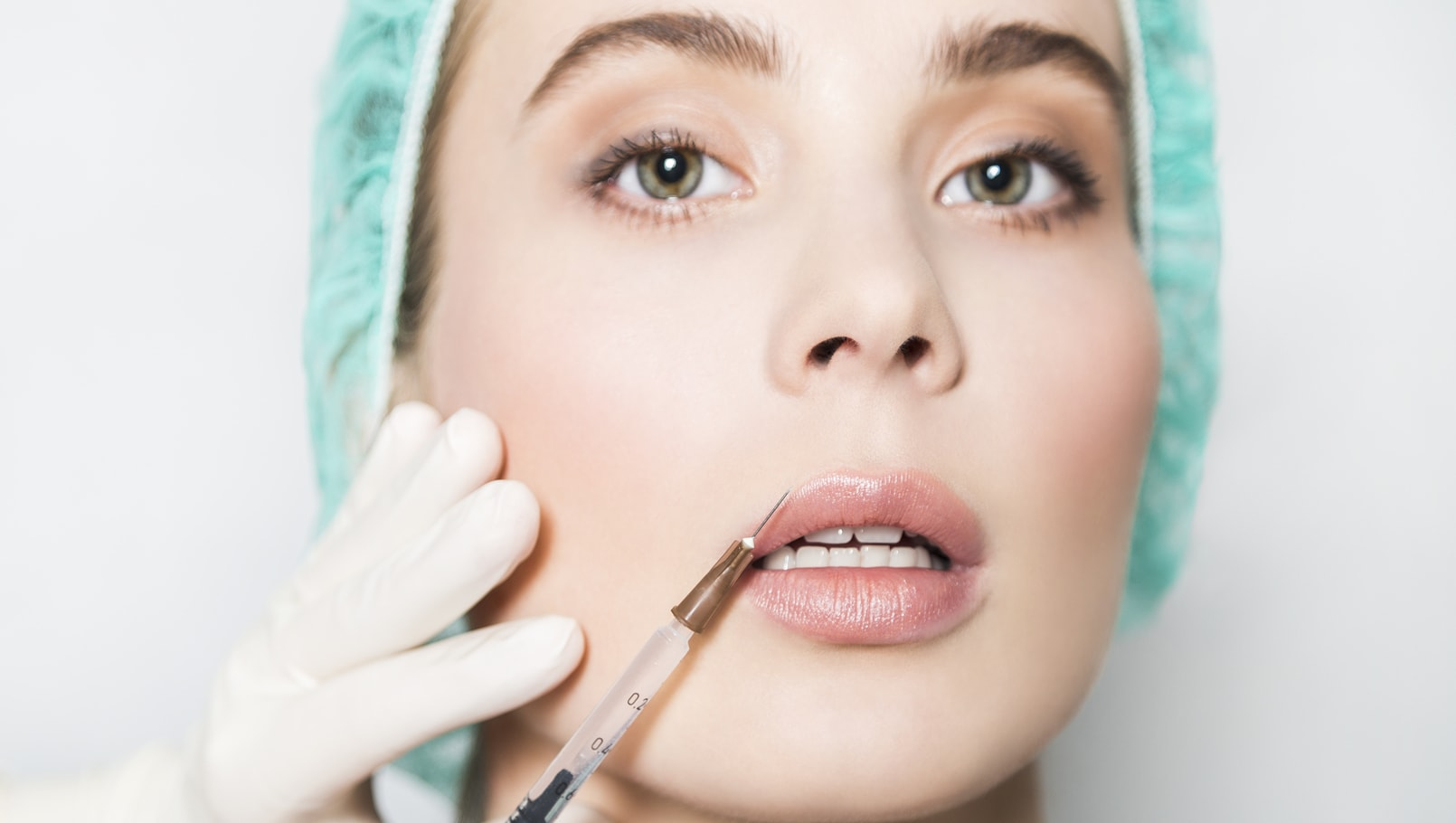 Fat Grafting in Lip Augmentation