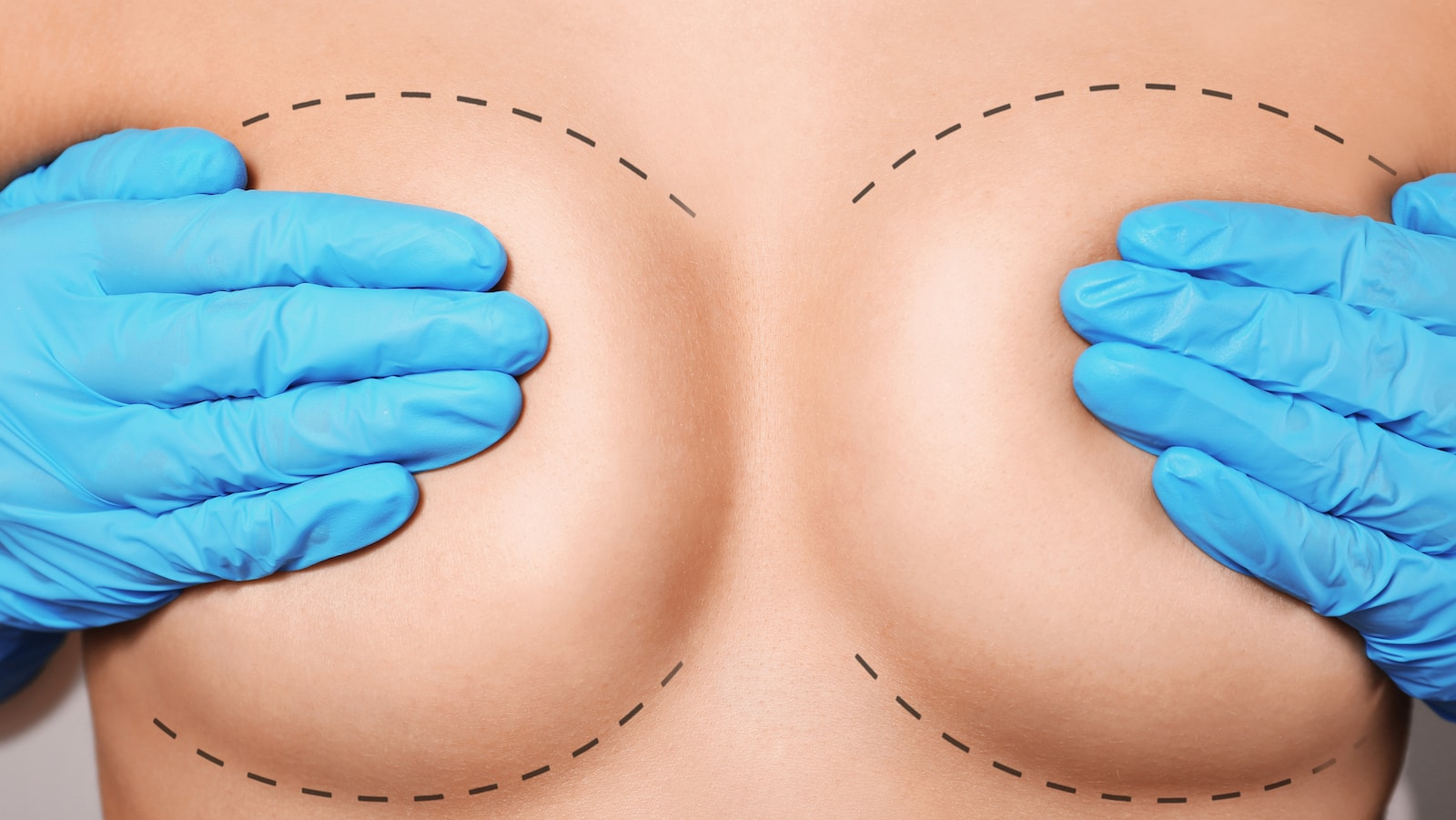 Flash Recovery Breast Augmentation