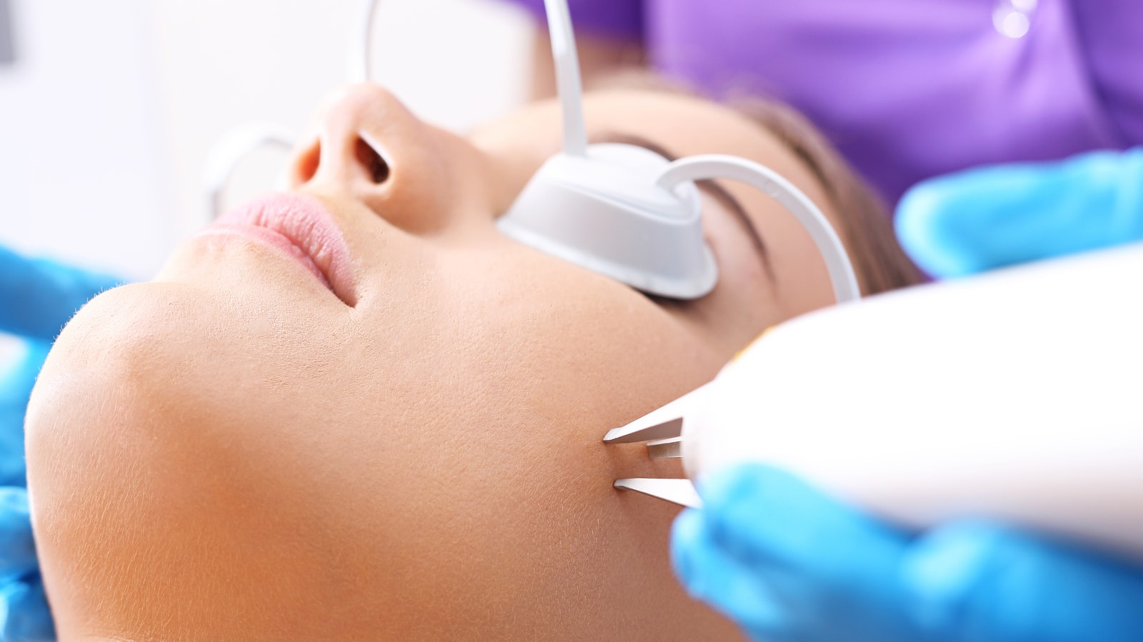 Laser Skin Resurfacing for Acne Scar Treatment