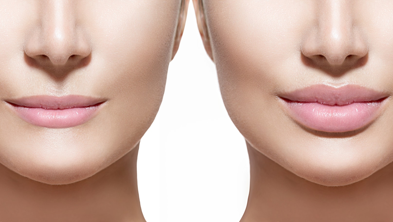 Lip Fillers for Young and Old Patients