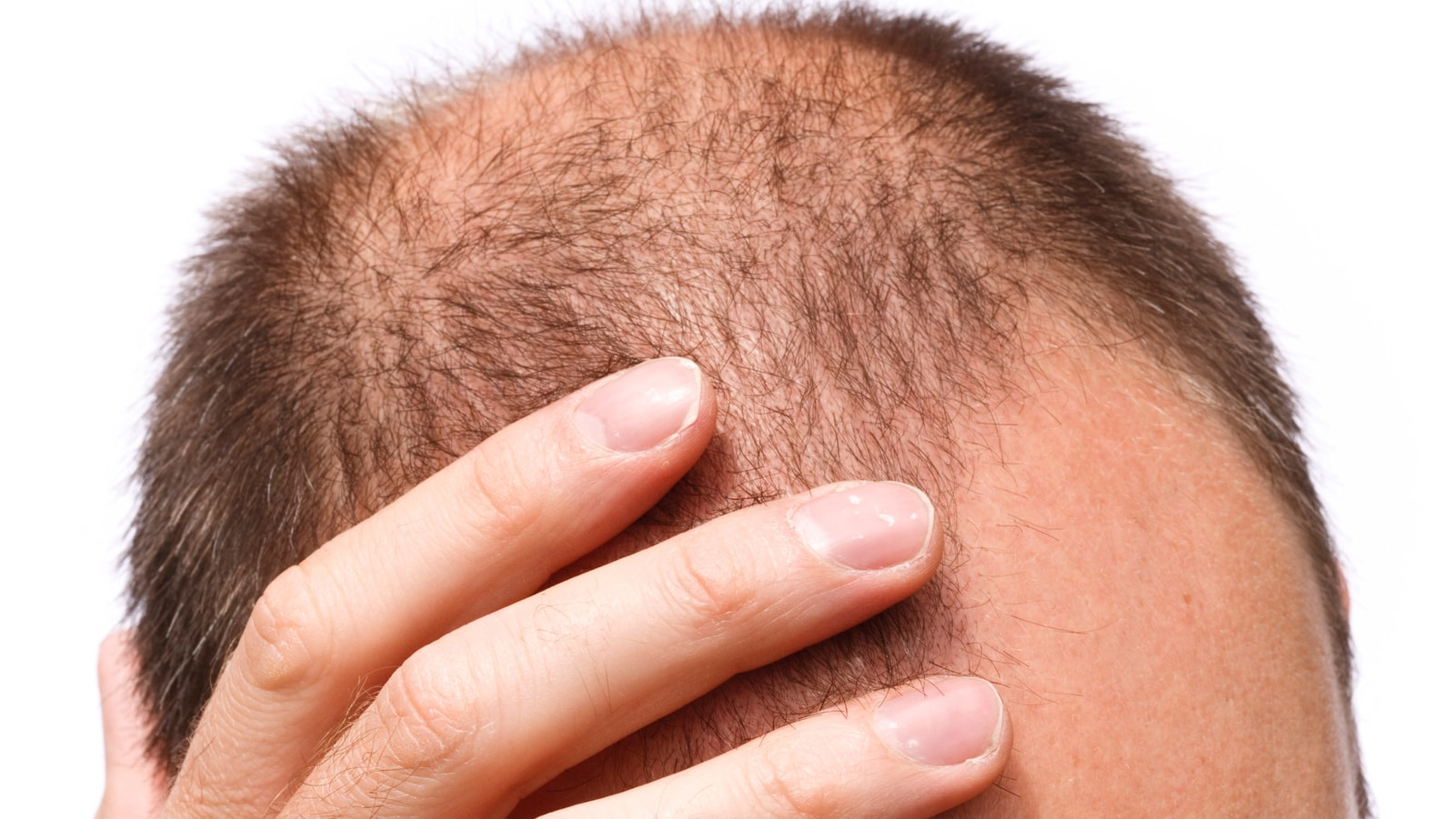 Rogaine for Male Pattern Baldness