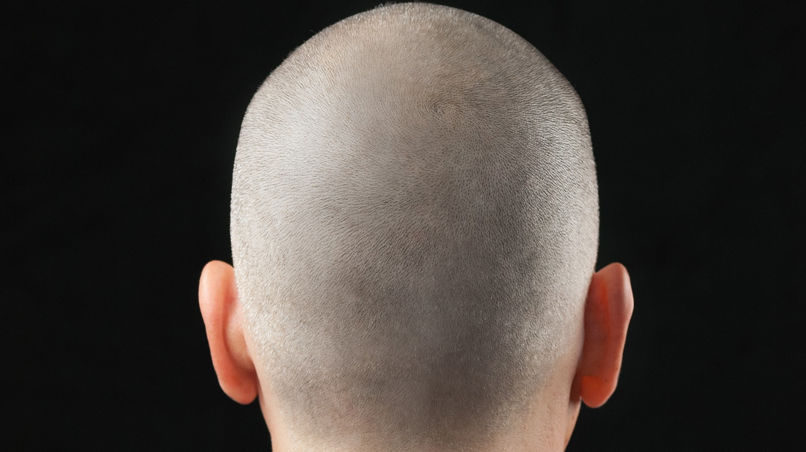 Scalp Micropigmentation SMP