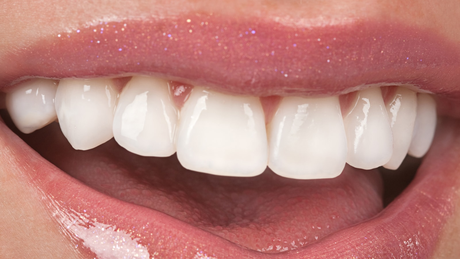 What Are Veneers Cosmetic Town