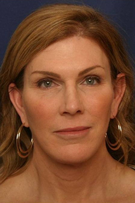 LORI: Facial feminization surgery photos connecticut