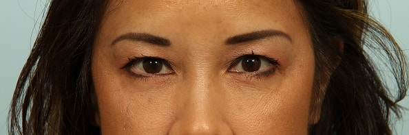 asian-double-eyelid-surgery-articles