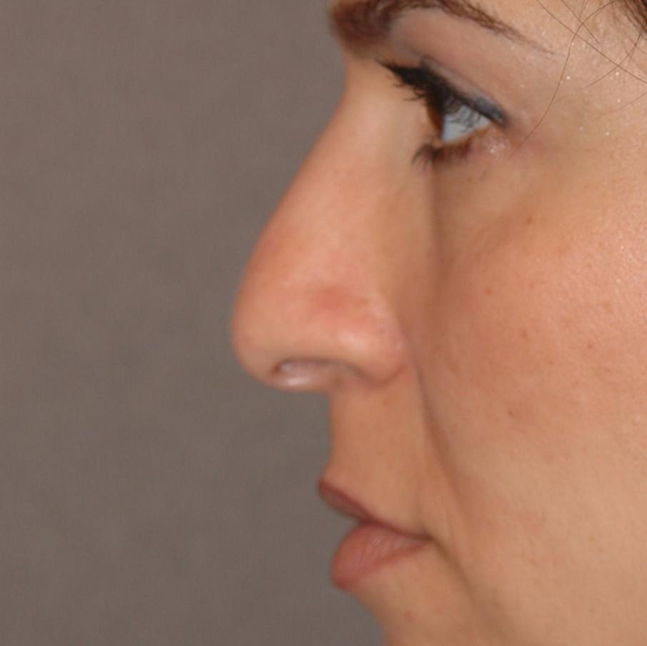 Facial rejuvenation reviews