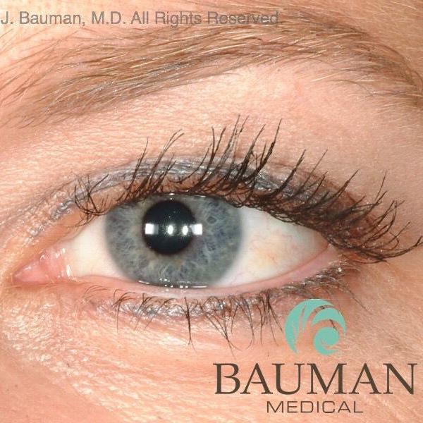 Eyelash Transplant Cosmetic Town