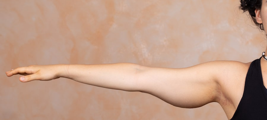 How arm lift can smooth your arms