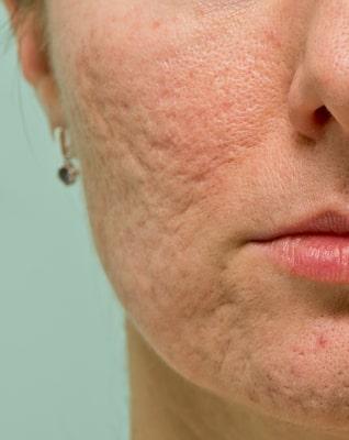Atrophic Acne Scars