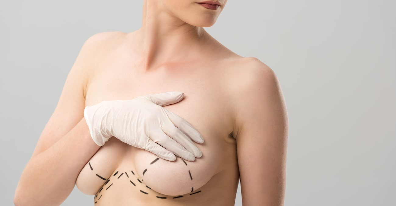 Steps to prepare for your breast augmentation surgery