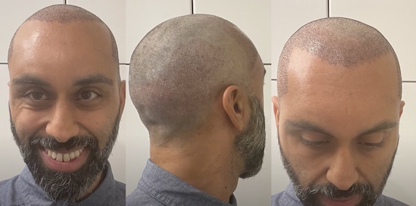Day 1 after hair transplant
