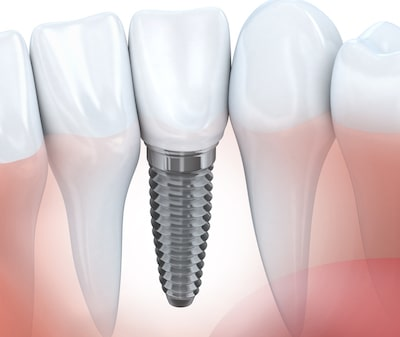 Dental Implant trend