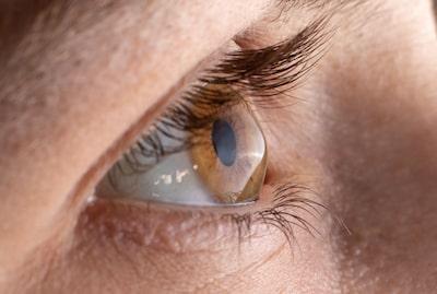 Eyelash Transplant Surgery Reasons