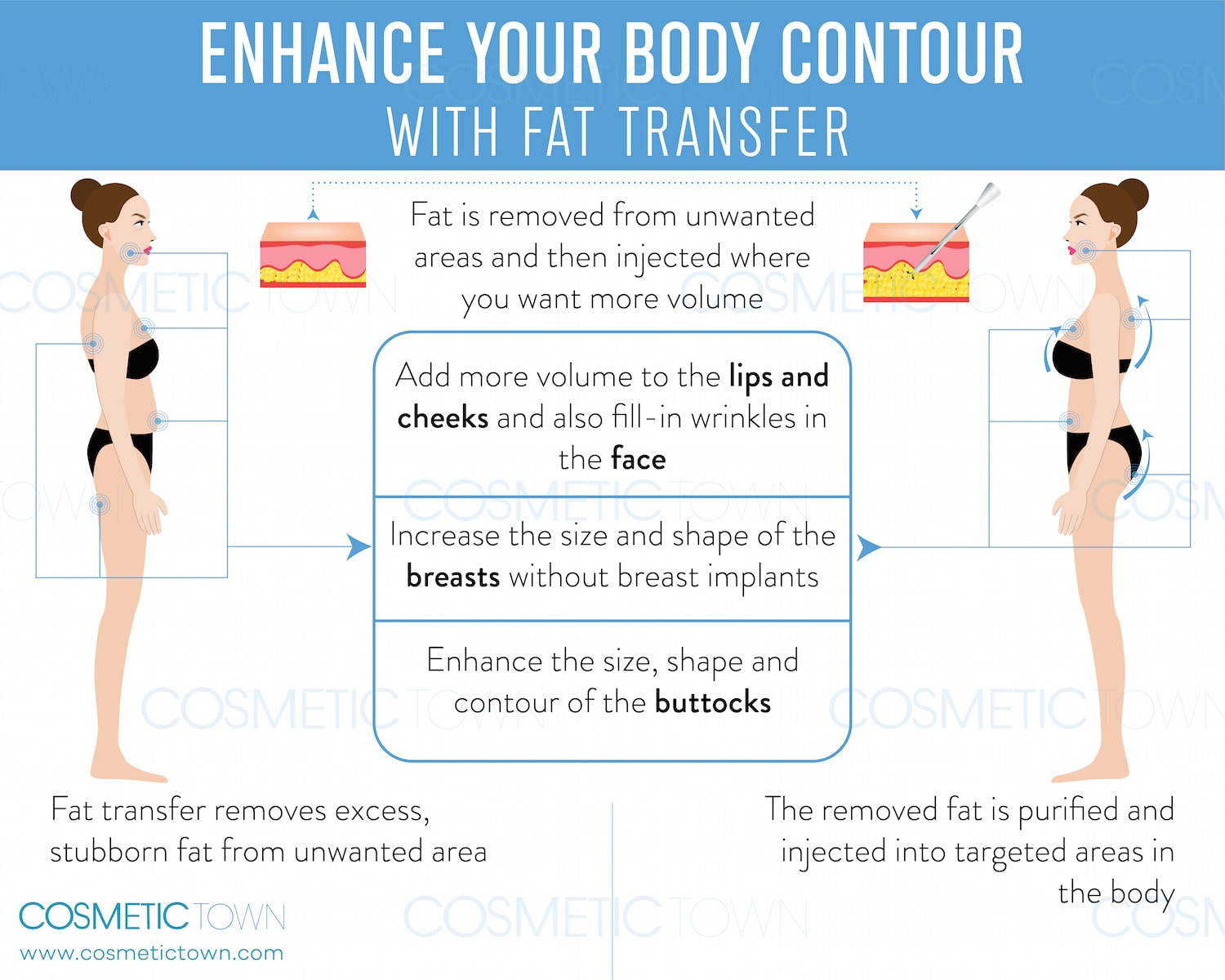 Enhance your body with fat transfer