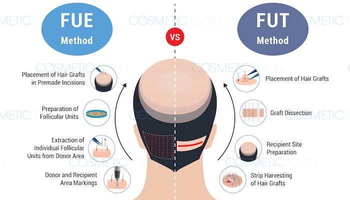 Learn about the different types of hair transplant procedures