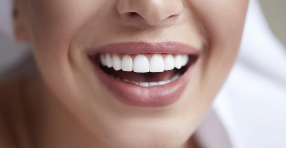 Dental Veneers to Improve Teeth Appearance