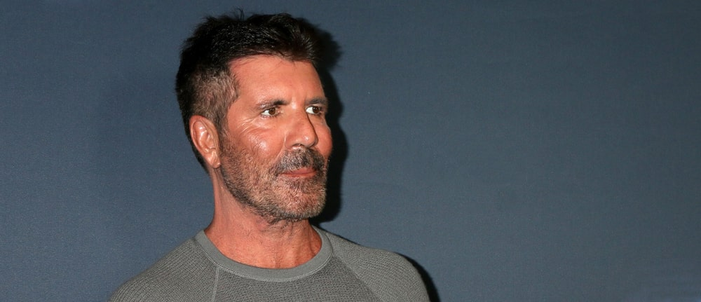 Did Simon Cowell have botox and fillers
