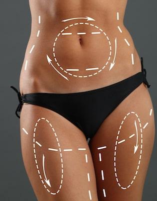 Liposuction eliminate fat