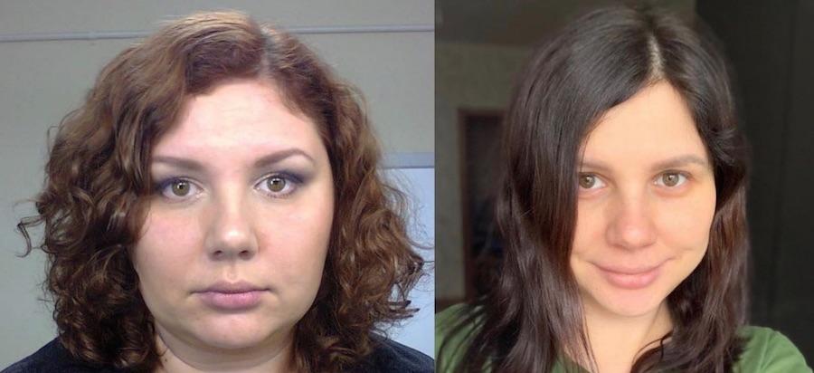 Marina Balmasheva has plastic surgery to look attractive