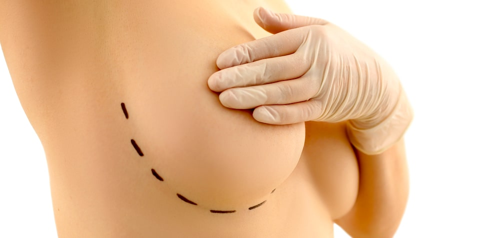 Breast implant removal story of a personal trainer