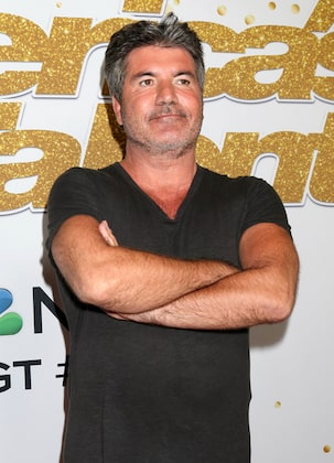 Simon Cowell Suspected Botox and Fillers