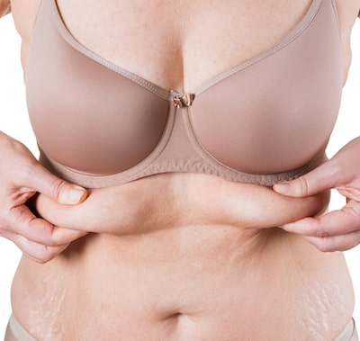 Surgical option for sagging skin