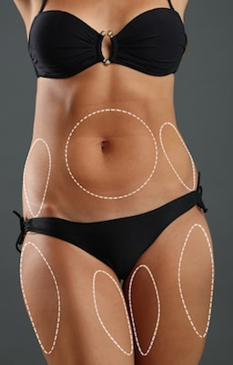 Tummy tuck and laser liposuction