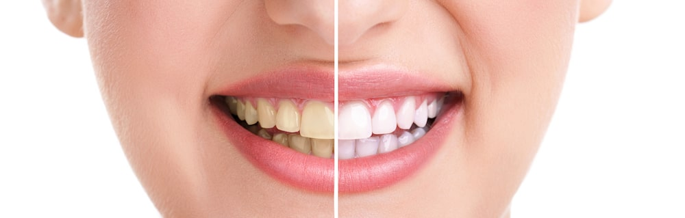 Learn all about zoom teeth whitening